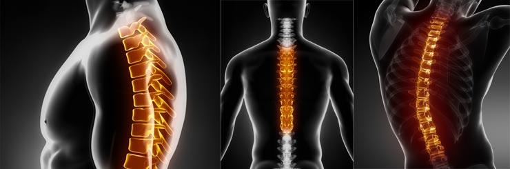 Ρευματικές Παθήσεις Αργύρης Ζουμπάκης Φυσικοθεραπευτής χαλκίδα